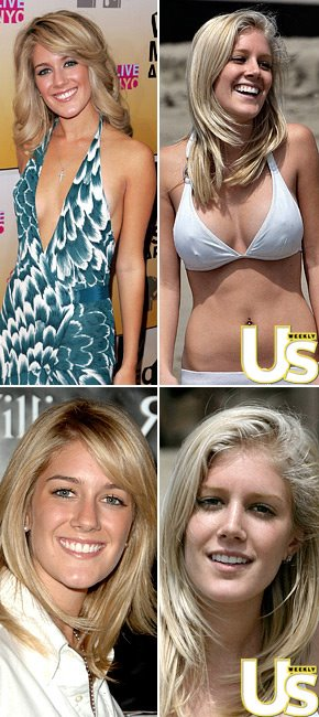 heidi montag before and after 10 plastic surgery. Heidi Montag Nose Job,