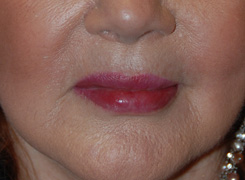 After Restylane Injections / Lip augmentation