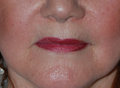 Before Restylane Injections / Lip augmentation