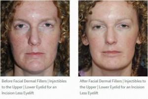 Fillers Upper Lower Eyelid Eyelift