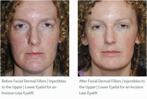 Fillers Upper Lower Eyelid Eyelift