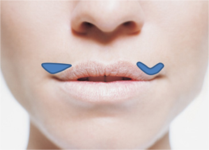 Lip Lift Diagram