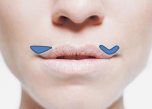 Lip Lift Diagram