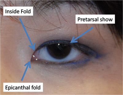 Pretarsal Show And Epicanthal Fold Are Important Terms