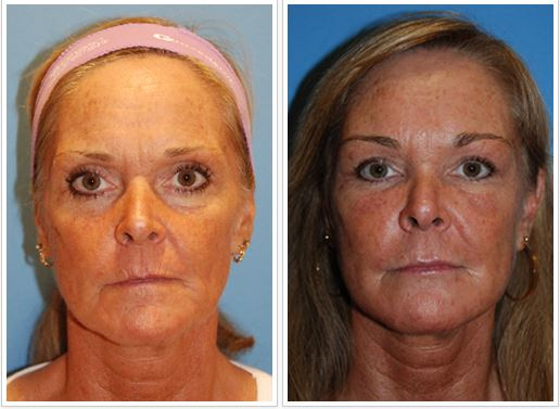Youngvitalizer incision less browlift