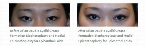 asian-bleph-double-eyelid-crease-before-after