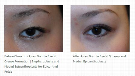 asian-double-eyelid-crease-before-after-left-eye