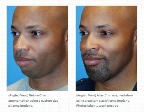 chin-implant-before-after