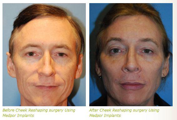 cheek implant before after pictures