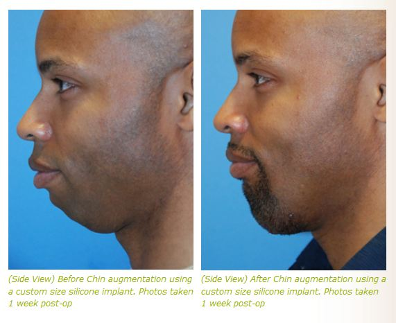 chin implant before after photos