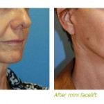 mini face lift before after