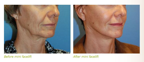 mini face lift before after pictures