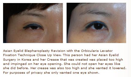 ptosis repair for asian eyelid procedure
