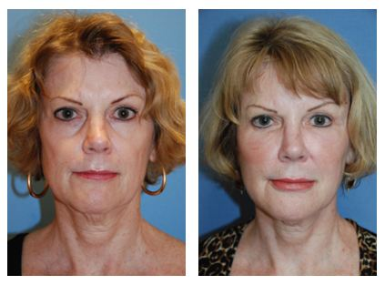 incision less face lift young vitalizer before after pic