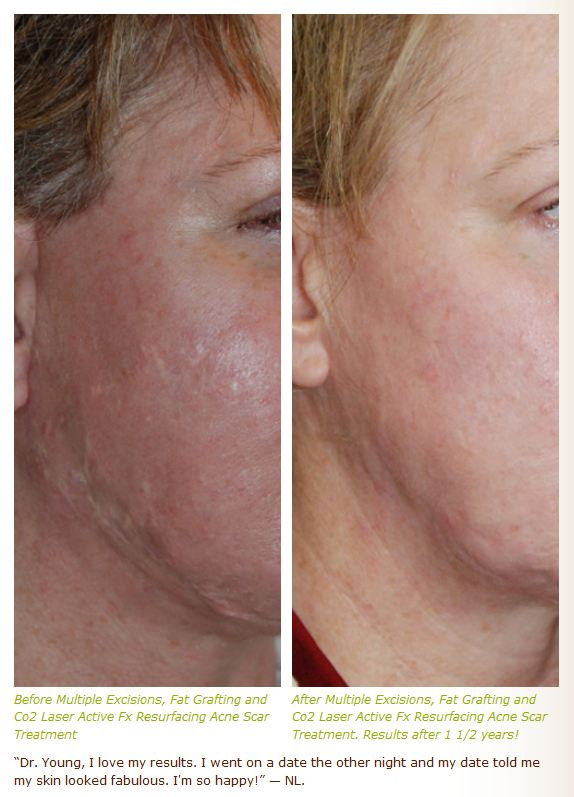 acne scar treatment with excision