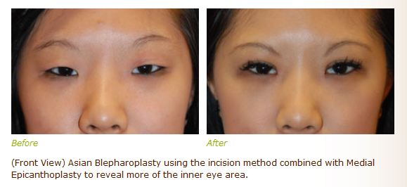 asian double eyelid before and after pictures