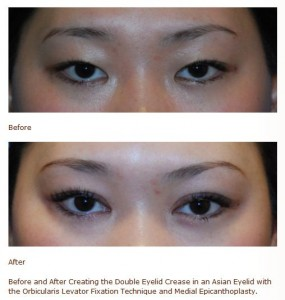 asian double eyelid medial canthoplasty surgery before after