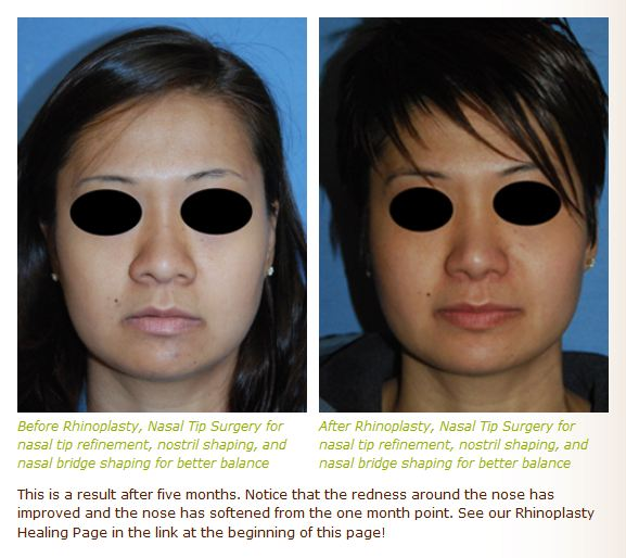 asian rhinoplasty before after images