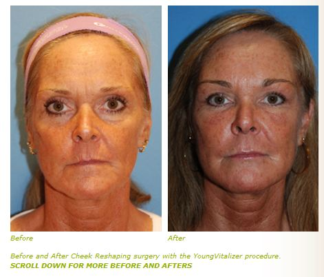 cheek lift with youngvitalizer