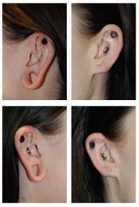 gauged earlobe repair