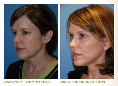 lateral brow lift before after images