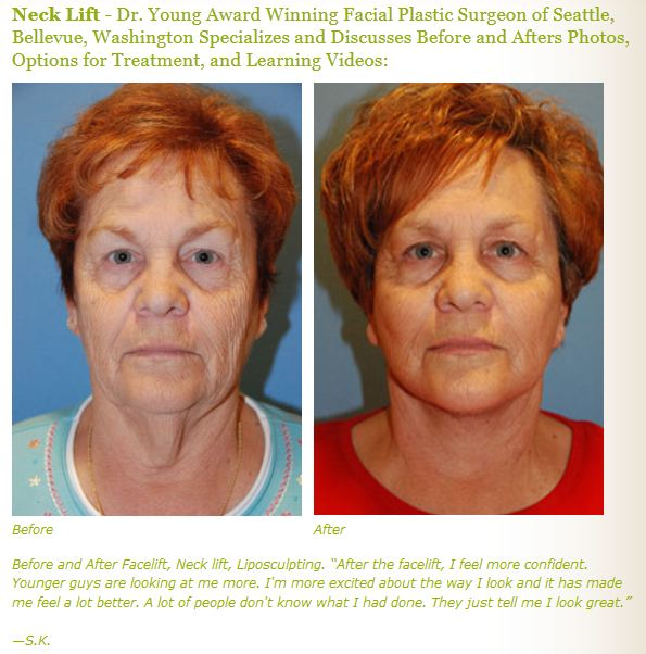neck lift before after pictures