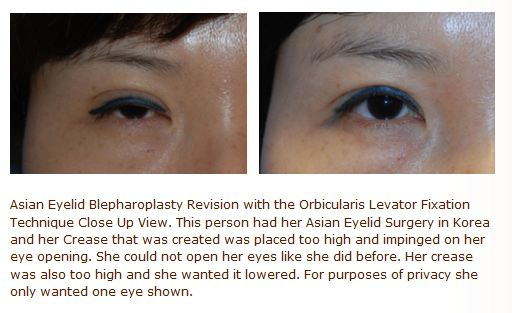 revision asian double eyelid surgery