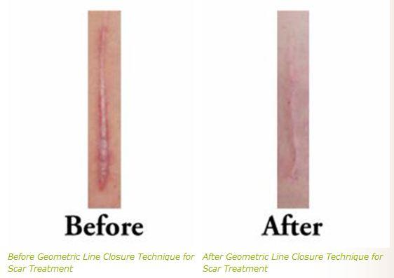 sca rtreatment geometric line closure