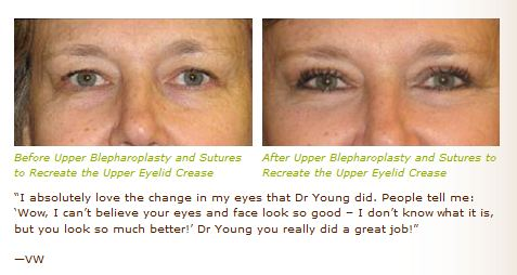 upper eyelid lift blepharoplasty