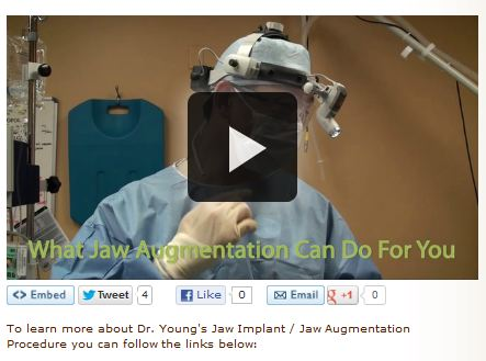 jaw augmentation video