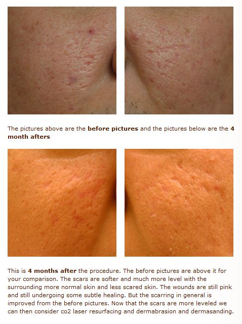 acne scar subcision tca cross treatment images