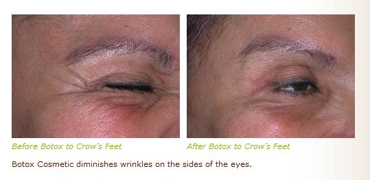 botox dysport crows feet