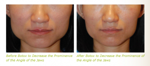 dysport jaws, botox jaws, jaw reduction, jaw shaping