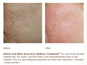 acne scar treatment, acne scar reduction