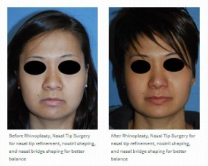 asian rhinoplasty before after