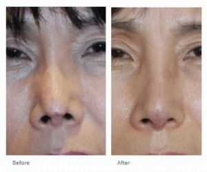 rhinoplasty revision asian