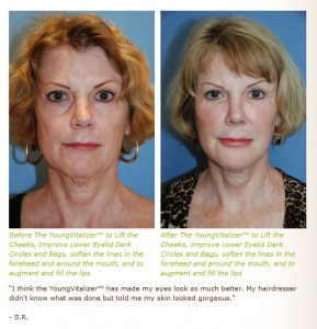youngvitalizer effect on skin rejuvenation