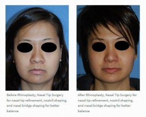 Rhinoplasty asian before after wide nose nostril