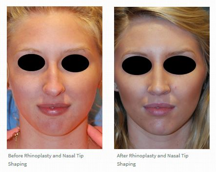 Rhinoplasty Nasal Tip Narrowing Hump Removal before after