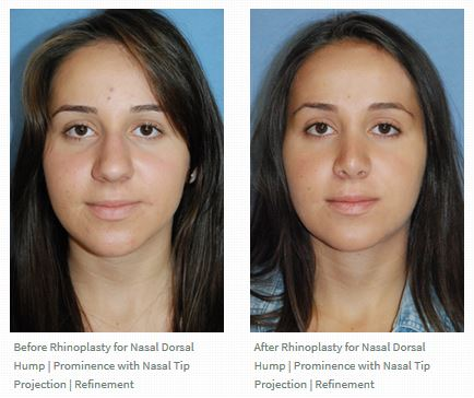 Rhinoplasty before after for Middle Eastern Persian Patient