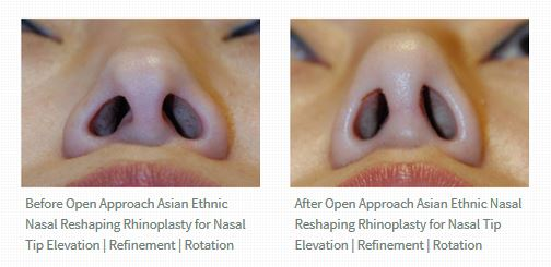 Rhinoplasty Open Approach Incision Dr. Philip Young