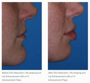 Vy Advancement Lip Augmentation Dr. Philip Young Seattle Bellevue