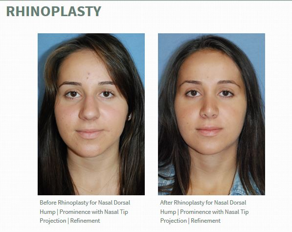 Rhinoplasty Before and Afters by Dr. Philip Young