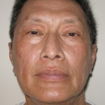 Asian Ethnic Laser Resurfacing After Picture