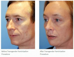 Reviews | Testimonials for Dr. Philip Young Seattle | Bellevue and his work on Transgender Facial Feminization | Masculinization