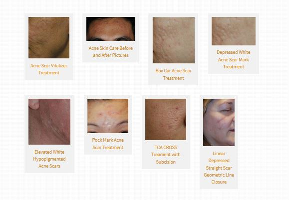 acne scar treatment photo directory