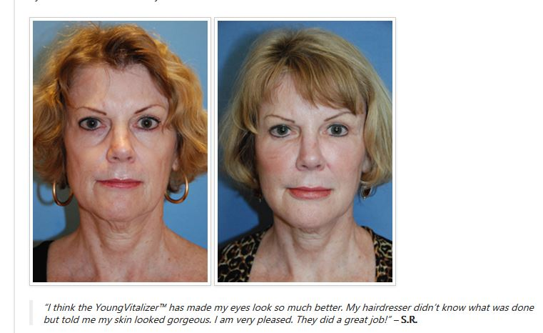 YoungVitalizer Incision Less Face Lift