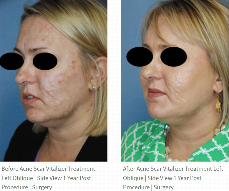 acne scar vitalizer treatment before after
