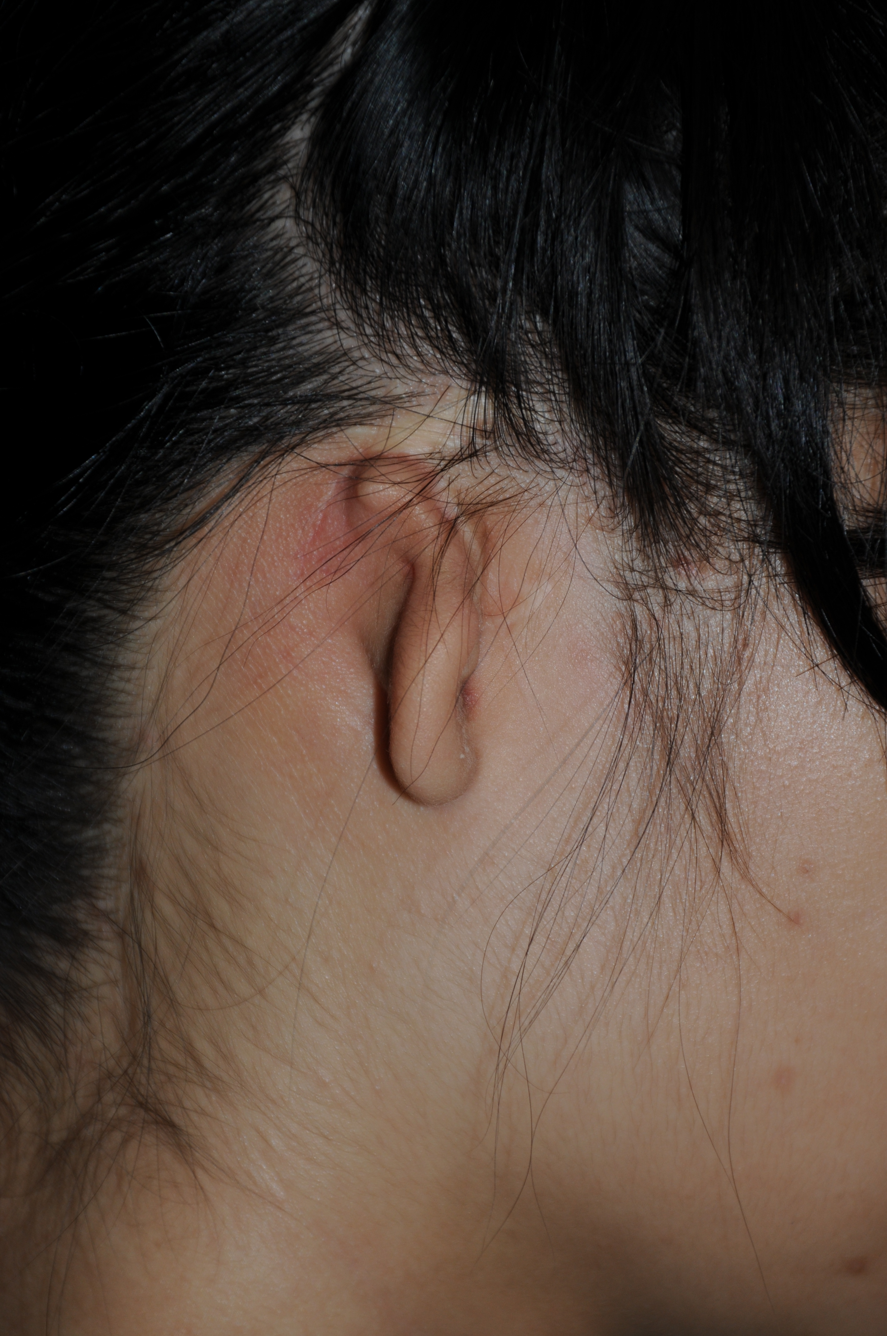 Microtia Ear Congenital deformity Dr. Philip Young Bellevue | Seattle