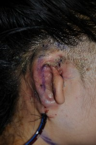 Microtia after rib graft carved and placed by Dr. Philip Young of Bellevue   Seattle